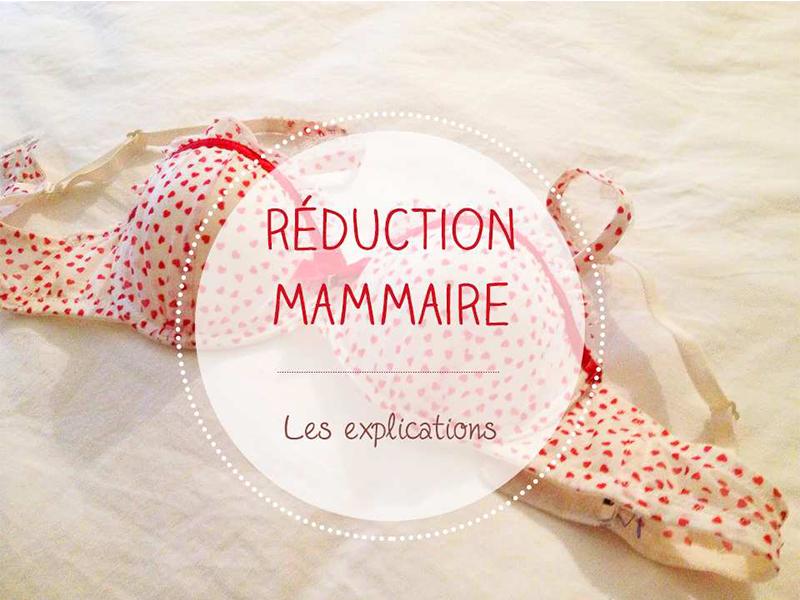 Ma réduction mammaire l Mon expérience